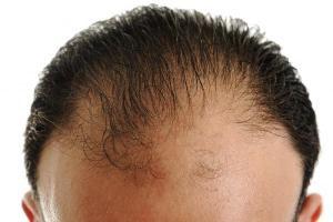 Pokrzywa na łysienie typu męskiego