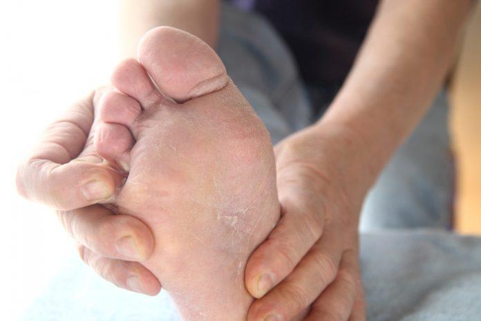 grzybica stóp